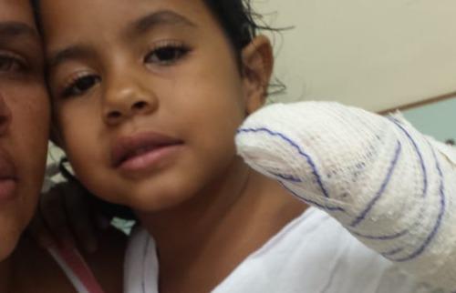 Arquivo pessoal - Esther, de 4 anos, teve dedo decepado em uma creche