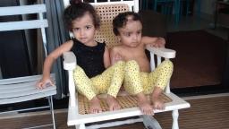 Cirurgia de separação das gêmeas siamesas completa dois anos