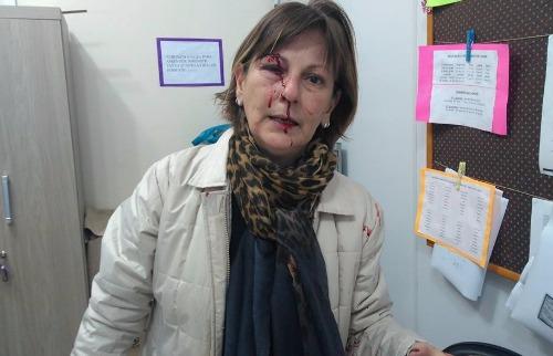Reprodução / Facebook - Professora foi agredida por aluno de 15 anos em Santa Catarina
