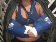 Mulher tem braços quebrados por namorado em Indaiatuba