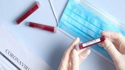 Programa de Combate a Epidemias recebe inscrições até amanhã (30)