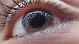 Cai número exames de retinopatia diabética em Ribeirão Preto