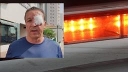 Edson Ferraz é agredido ao ter casa invadida por assaltantes
